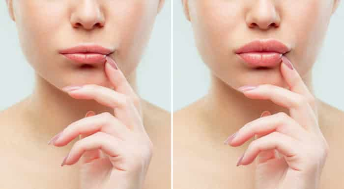 Acido Jaluronico: filler per labbra, riempimento rughe, aumento volumetrico zigomi e rimodellamento profilo mandibolare e profilo nasale