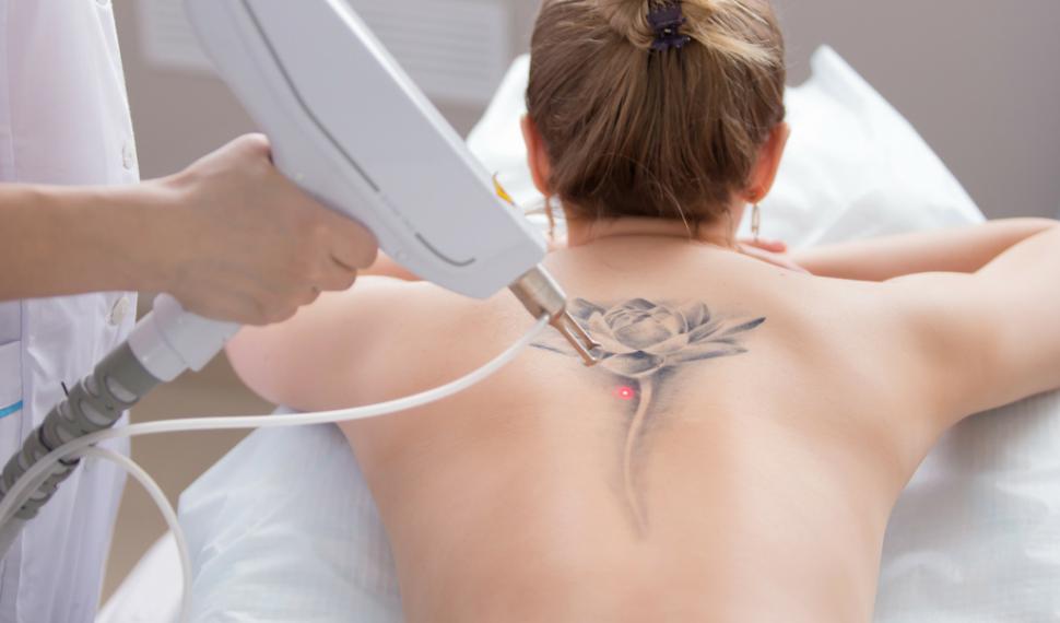 Laser rimozione tatuaggi